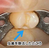 虫歯を除去したところ