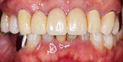 歯周病治療後